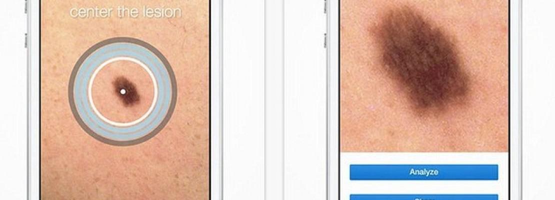 """Εφαρμογή """"Δερματολόγος"""" – Παρακολουθεί αλλαγές στο δέρμα και τους σπίλους"""
