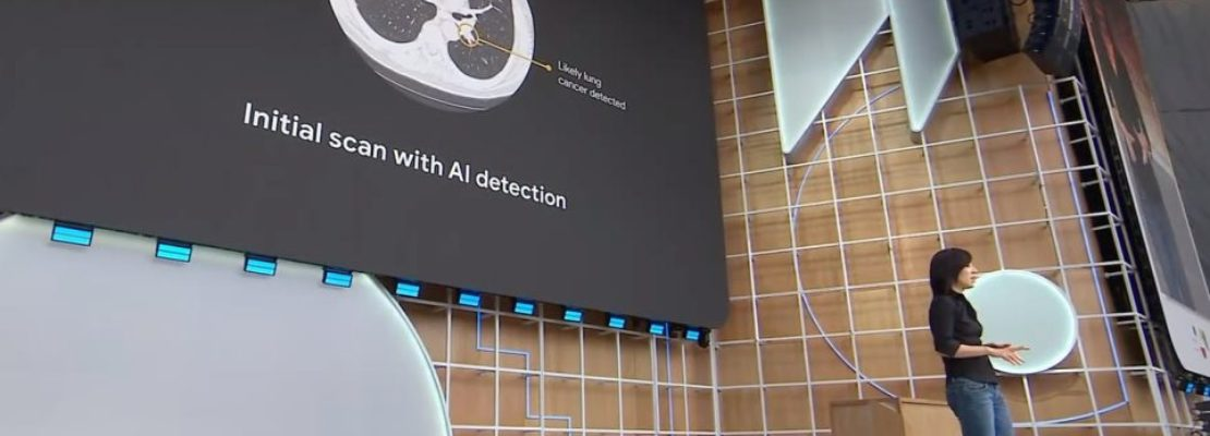 Google: Νέο σύστημα τεχνητής νοημοσύνης ανιχνεύει παθήσεις στους πνεύμονες